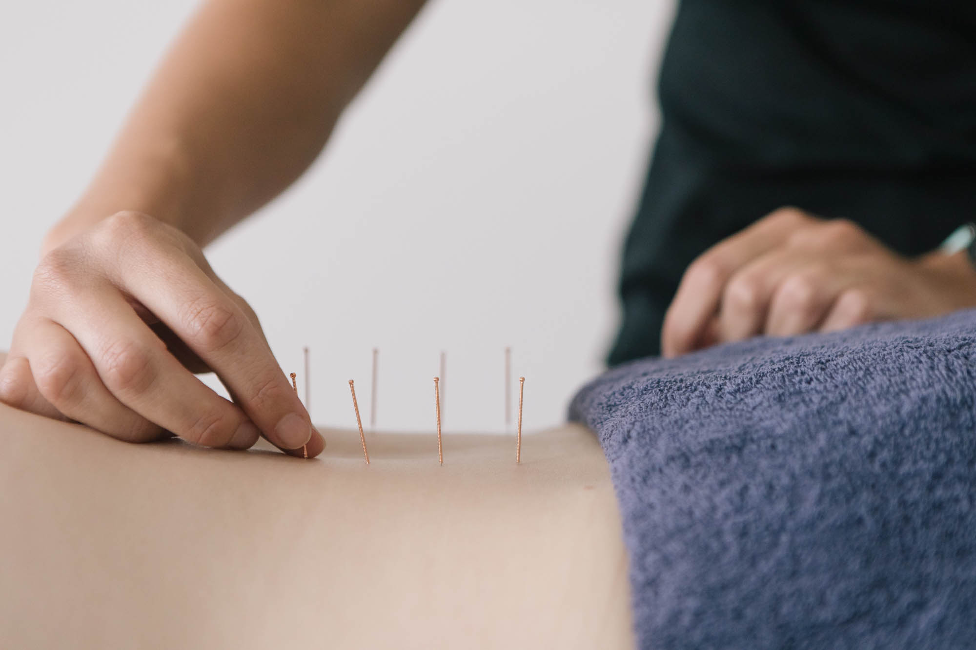 Needling at Live Well Health Centre