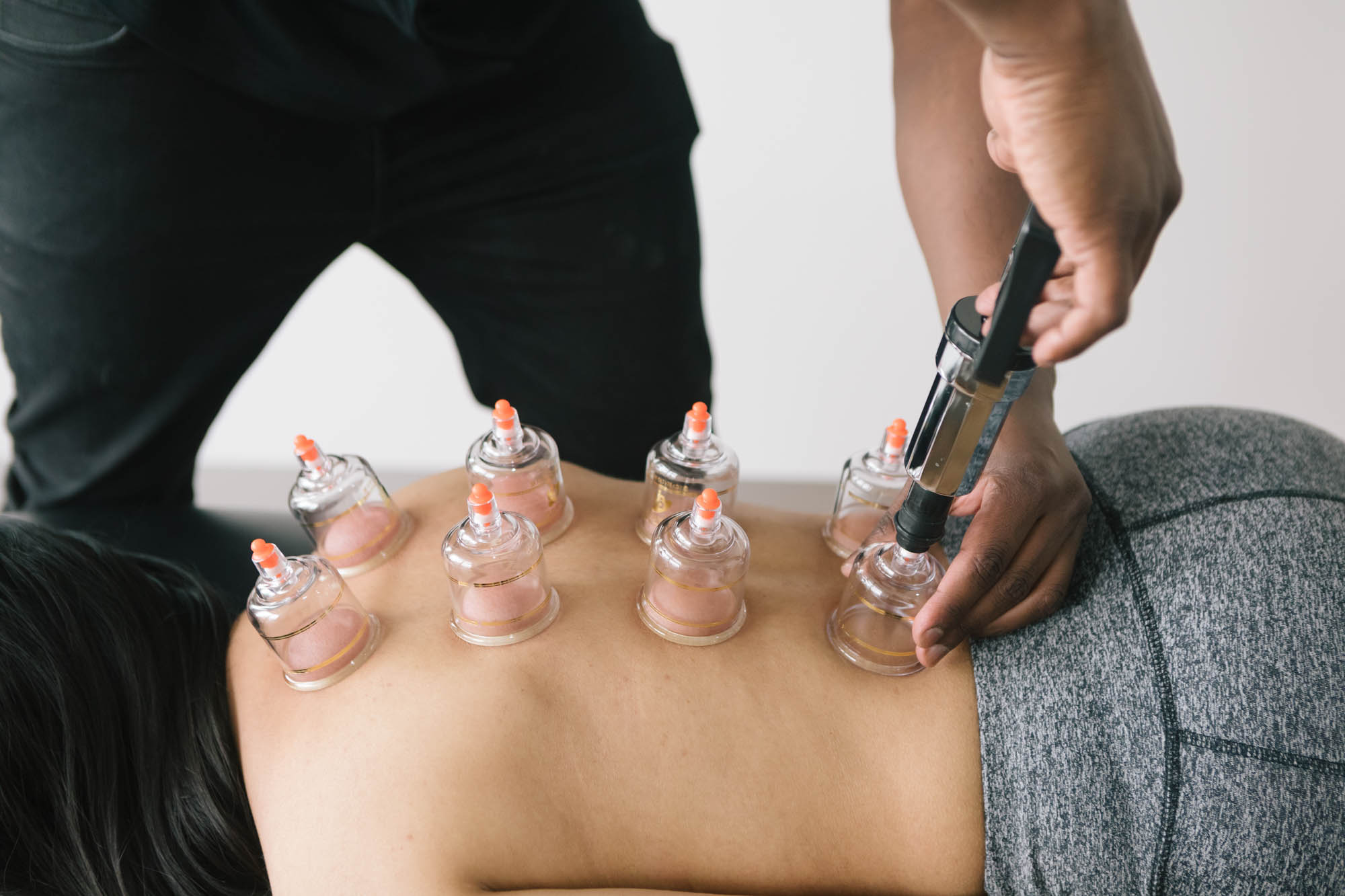Live Well Health Centre Cupping